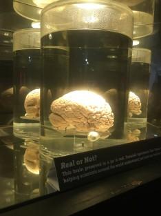 Spesimen otak manusia